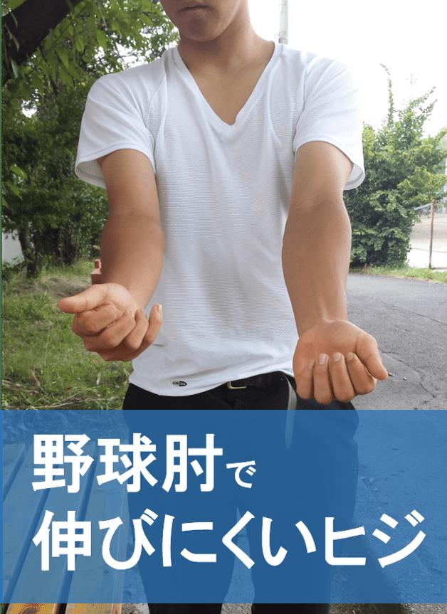 野球肘,伸びにくい,予防,治療